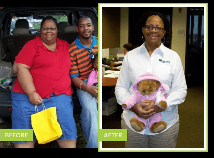 transformación perdida de peso – CHERYL Antes y Después de bajar de peso