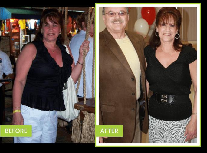 transformación perdida de peso – JUDY Antes y Después de bajar de peso